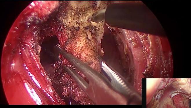 経肛門的直腸がん手術