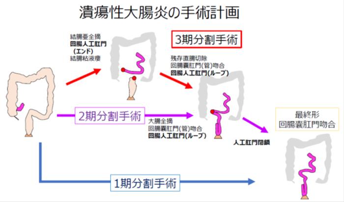潰瘍性大腸炎の手術計画
