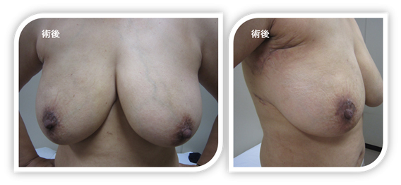 図2:右部分切除症例。腋と乳輪の周りの皮膚切開。切除の痕はほとんど目立たない。
