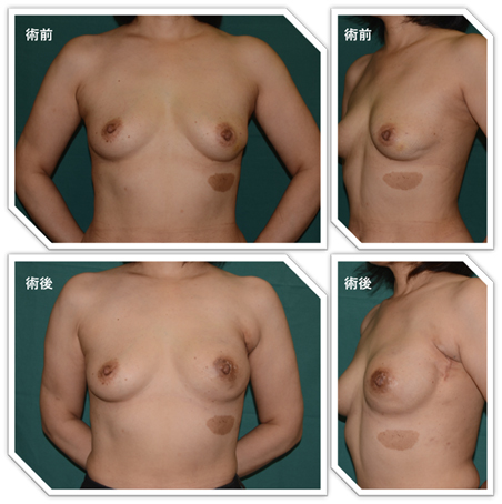 内視鏡補助下に手術した乳頭温存乳房全切除症例(左乳癌)。人工物(シリコンインプラント)による再建後。傷は乳輪の周りと腋の小さな傷のみ。