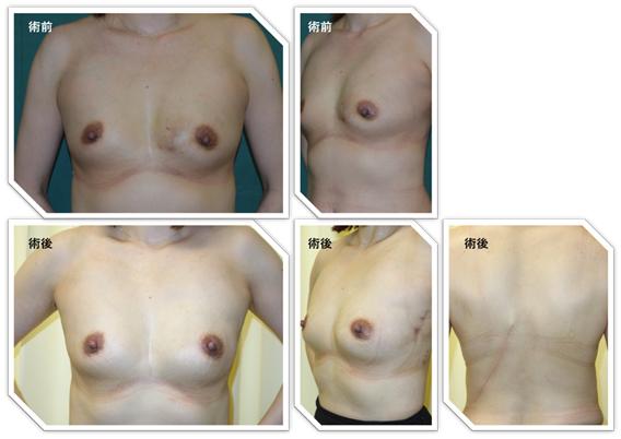 広背筋皮弁による再建症例(左乳癌)。腋と背中に傷は残るが、前から見ると目立たない。
