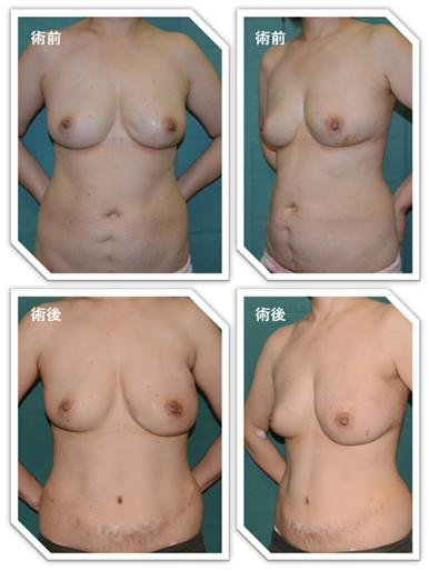 腹部脂肪を使用した再建症例(左乳癌)。もともと腹部手術歴があるが、手術を工夫することで再建可能。ただし、術後は腹部に横切開の手術痕が残る。